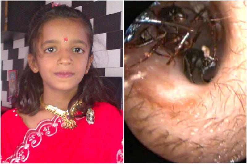 Descubren un hormiguero dentro del oído de una niña india