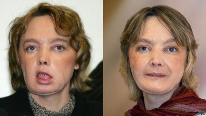 Muere Isabelle Dinoire, la paciente que fue sometida al primer trasplante de cara del mundo