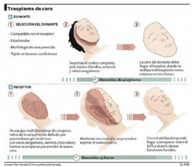 Exitoso primer transplante de cara en España