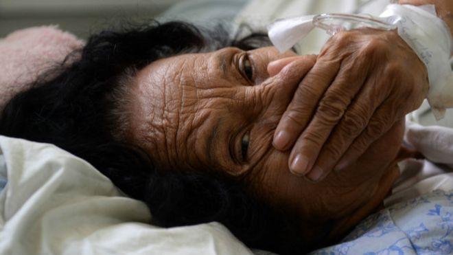 Guillain-Barré, la otra enfermedad que podría estar vinculada al zika