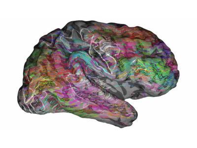 El cerebro acomoda las palabras en un mapa