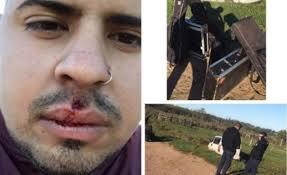"""El Reja sufrió un accidente de camino a un show: """"hay que mejorar las rutas en Uruguay"""", dijo"""