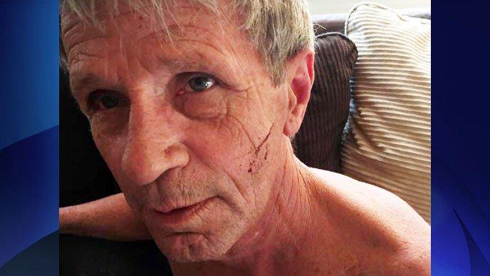 Un canadiense de 61 años salva la vida tras boxear con una osa