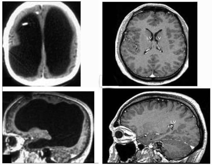 Un hombre que vive sin el 90% de su cerebro desafía a la ciencia