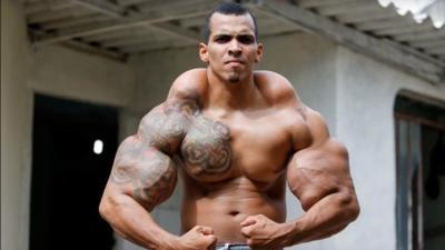 Así lucía el 'Hulk real' tras inyectarse una mezcla letal en sus brazos