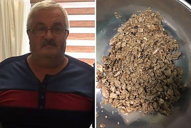 A un hombre le sacaron 88 piedras del riñón tras ir al hospital por un dolor de estómago