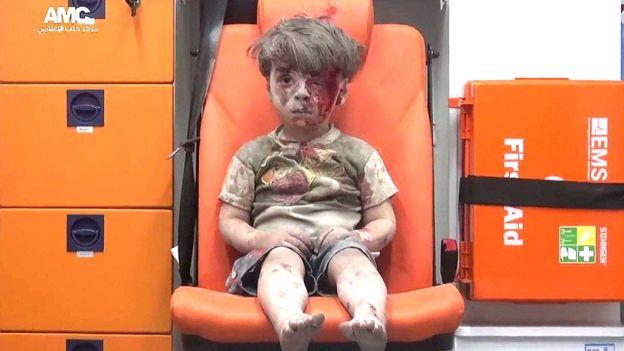El niño rescatado de un bombardeo que se convirtió en símbolo del horror en Siria