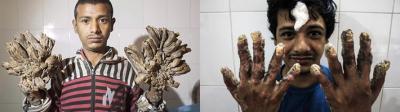 """El increíble cambio del """"hombre árbol"""" de Bangladesh: operaciones en sus manos fueron un éxito"""